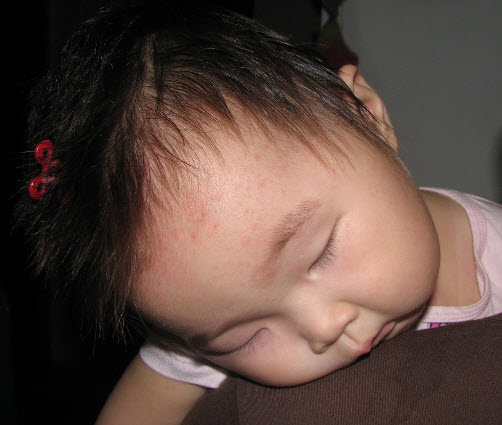 幼儿急疹的症状表现